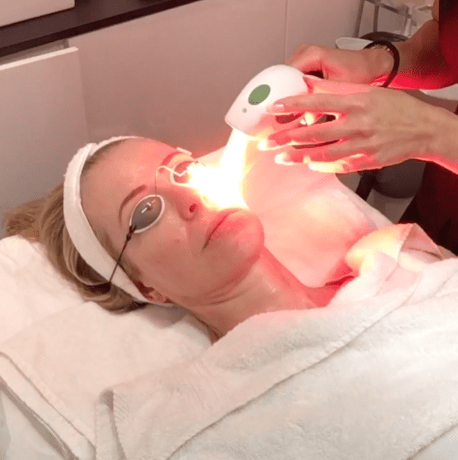 intense-pulsed-light-IPL