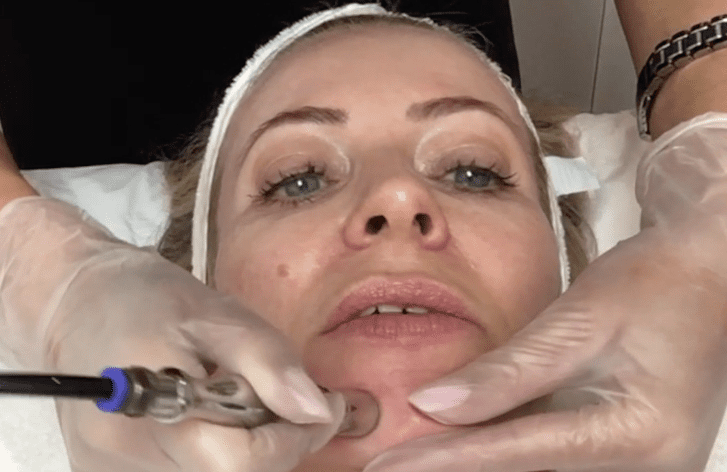 alice-hart-davis-receiving-hydrafacial