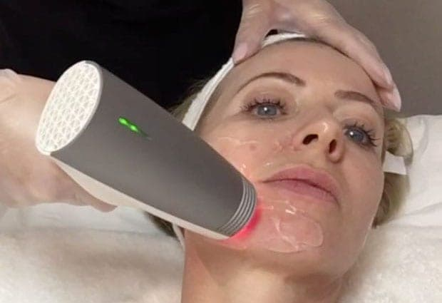 alice receiving radiofrequency treatment