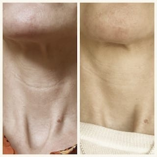 Can Profhilo injections soften neck wrinkles?