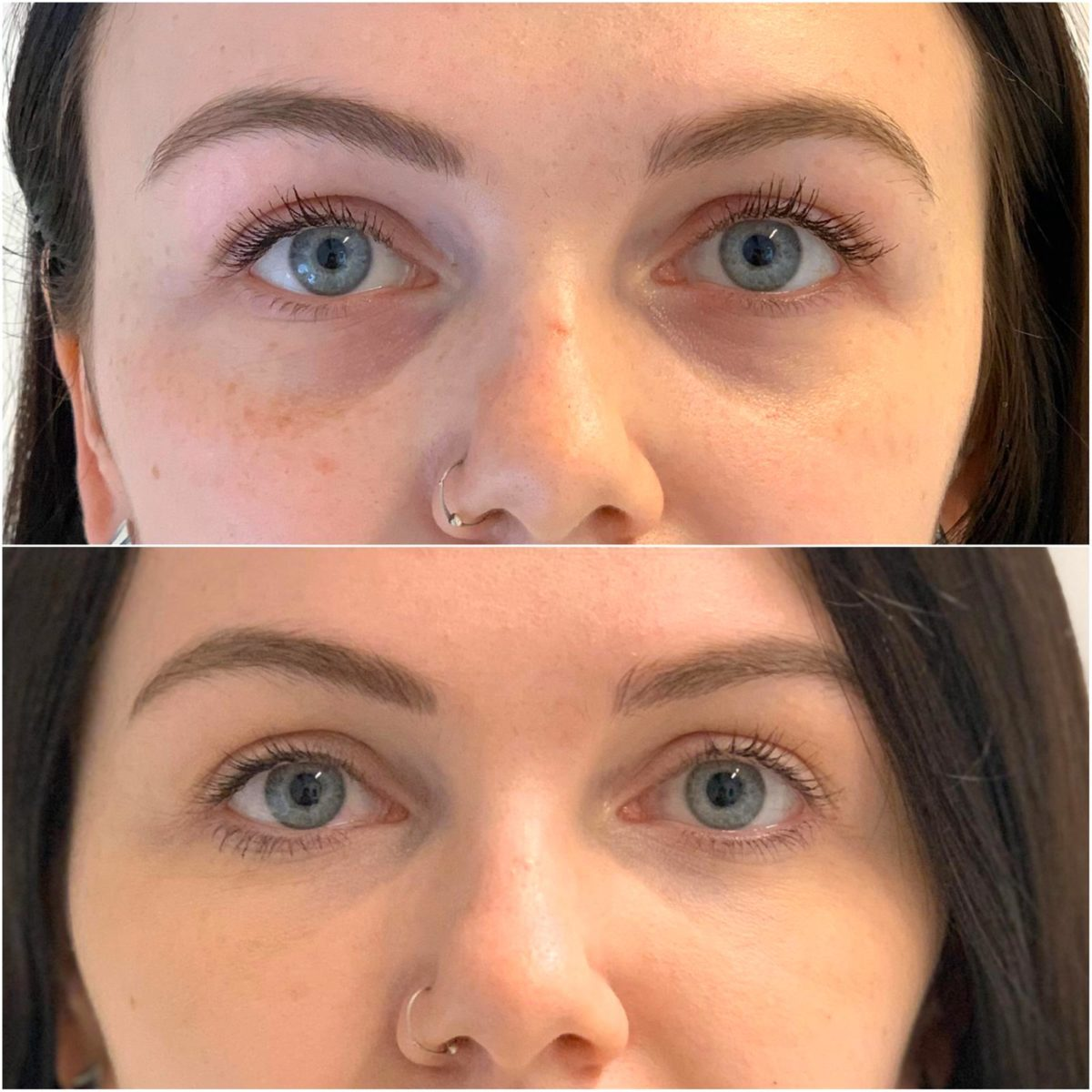 TOTW Ep 8: Tear trough filler for under-eye hollows