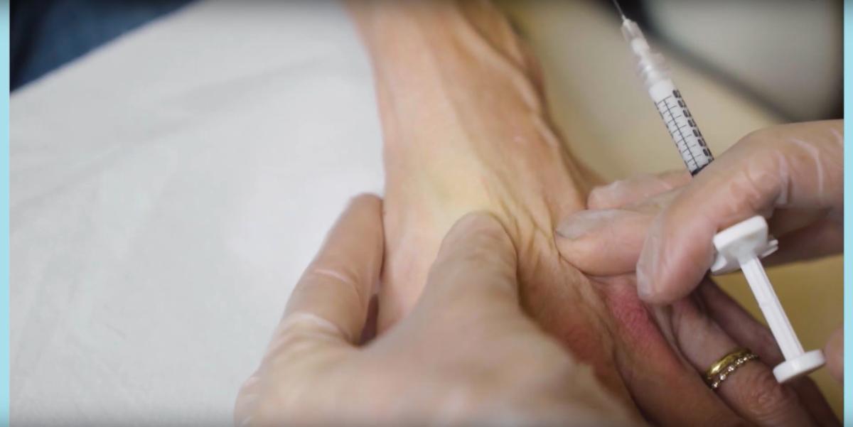 Tweak of the Week: improving older hands with injectable filler