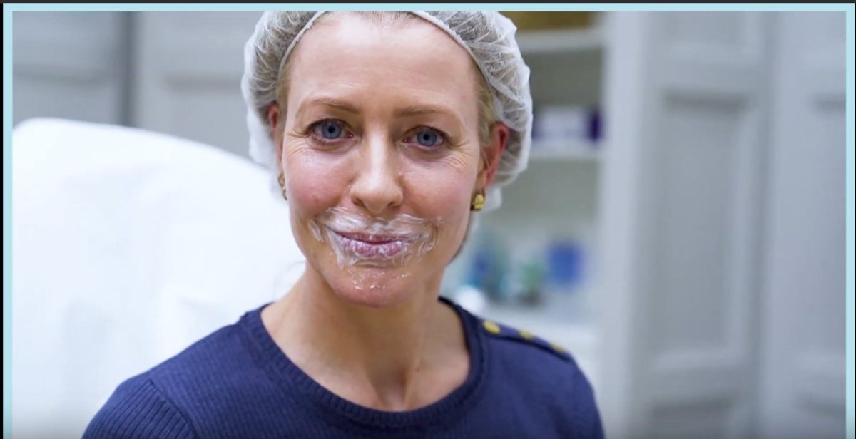 Tweak of the Week: Lip Enhancement by Dr Kate Goldie with BELOTERO® Lips