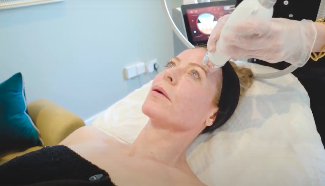 What's the buzz about radiofrequency microneedling?