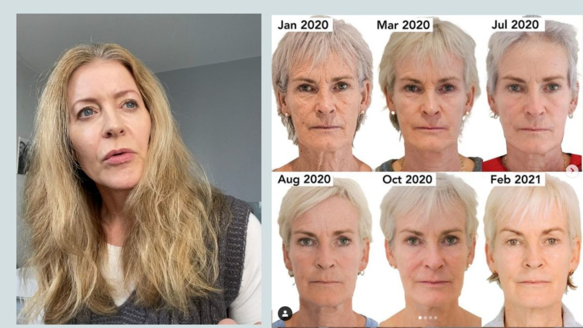 Those Judy Murray before-and-after photos – what's the fuss?