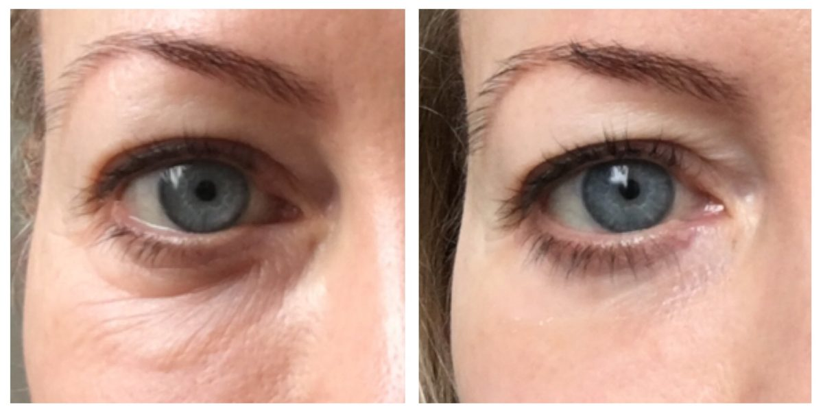 Let's Talk About…. dark circles under the eyes
