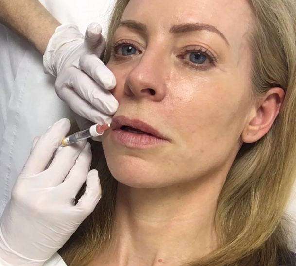 Will the Covid-19 vaccine make my fillers swell up?