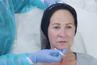 Susan undergoes treatment with Belotero Volume