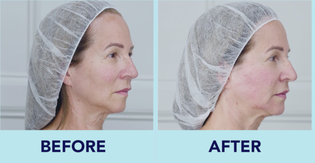 Before and after treatment with Belotero Volume with Dr Kate Goldie