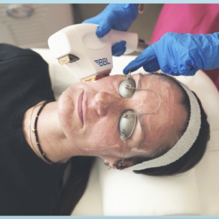 Tweak of the Week: Pigment busting with Sciton lasers, with Dr Maryam Zamani