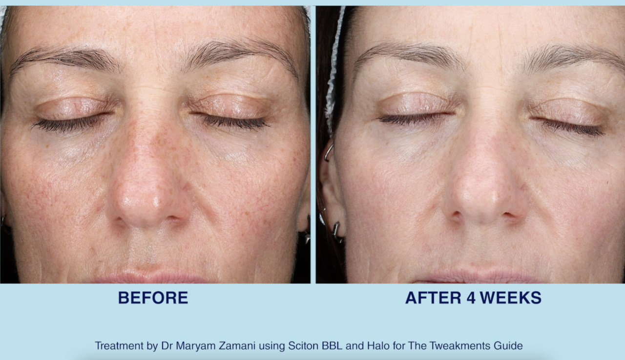 BBL with Dr Maryam Zamani before and after