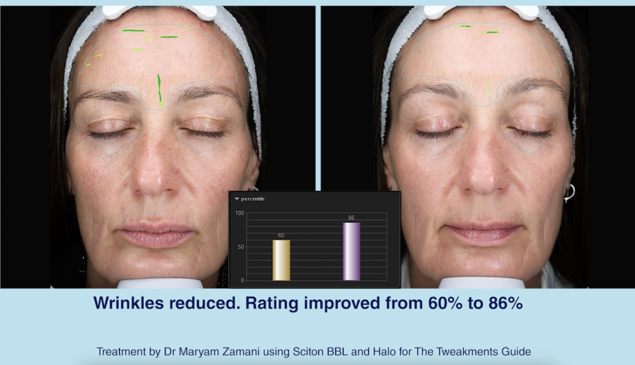 Sciton Lasers Before and After with Dr Maryam Zamani